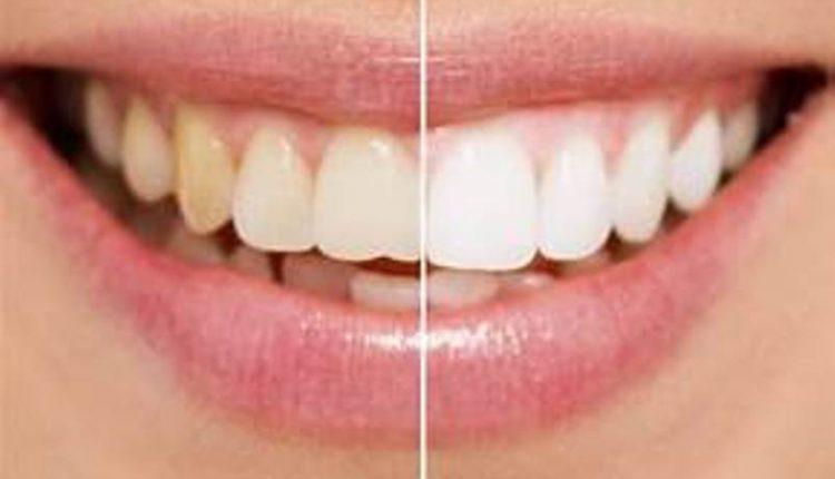 Έξυπνες σπιτικές «λύσεις» για να απαλλαγείτε από τα κίτρινα δόντια