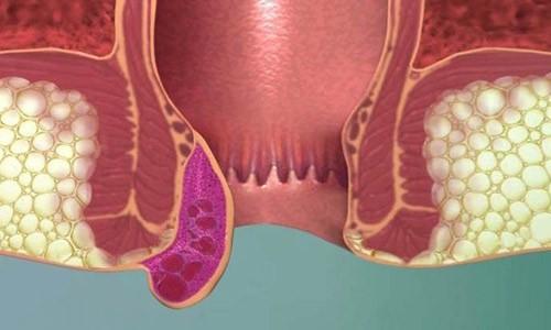 external_hemorrhoid-aimoraides