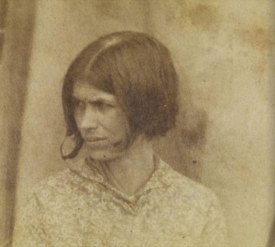 昔の精神病院にいた精神病・身体・知的障害患者の写真