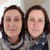 Lifting Facial Energétique®