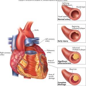 ubat kolesterol tinggi