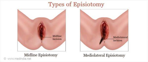 luka episiotomi