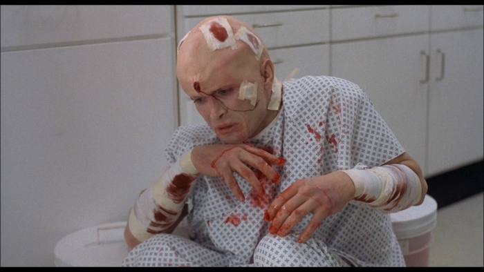 from-beyond-1986-patient