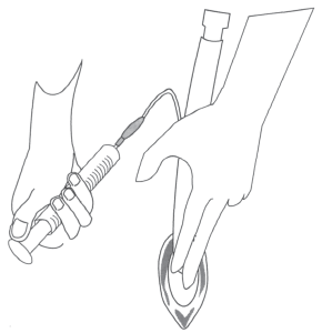 Illustration showing One technique to deflate the cuff of an LMA prior to insertion showing pressure of the cuff against a hard surface.