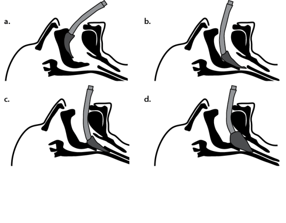 Illustration showing a cross-sectional sequence showing how the LMA slides into position behind the tongue to seal around the larynx.