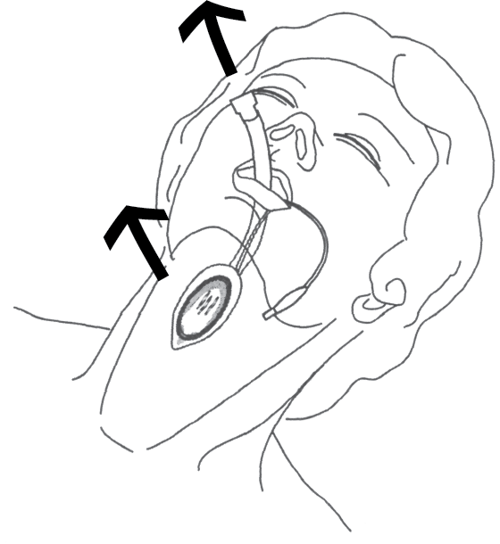 Illustration showing that LMA cuff inflation often causes the larynx to rise in the neck, as well as to cause the tube to rise slightly out of the mouth.