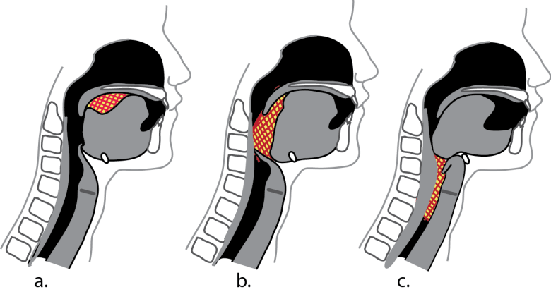Illustration showing 3 stages during swallowing to demonstrate how th muscles propel the bolus of food downward.