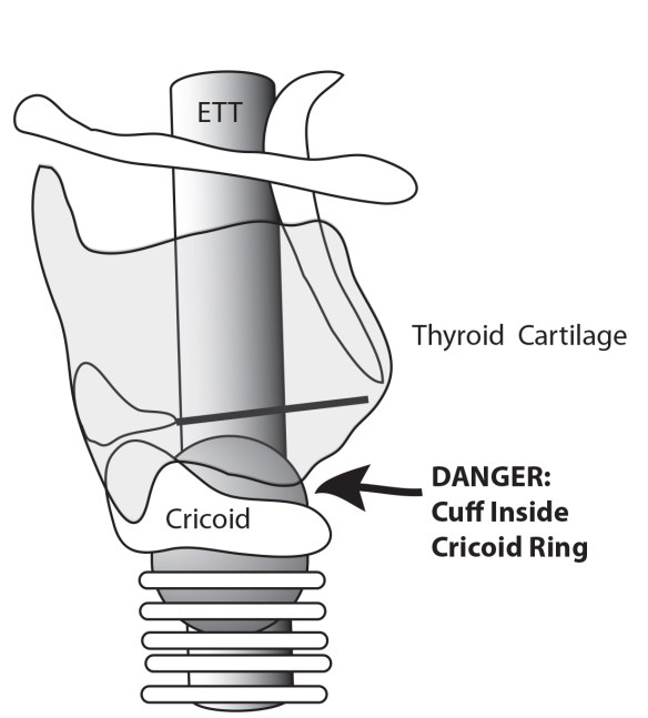 When cuff is within the cricoid ring, the recurrent laryngeal nerves can be injured.