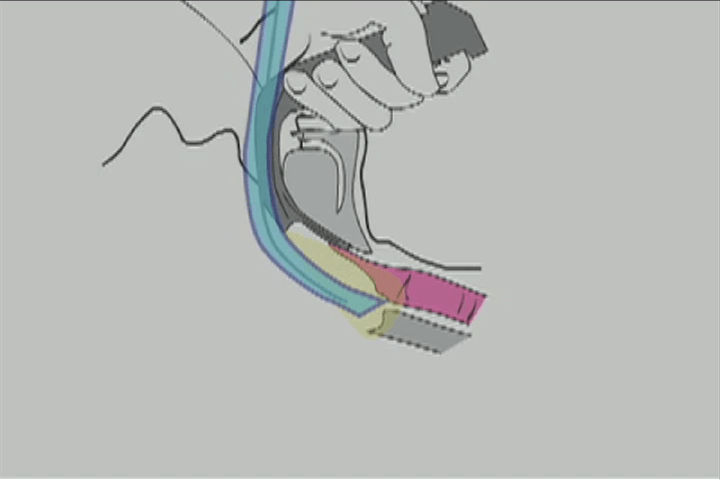 Illustration showing how placing ETT too deep places it in the wrong plane.