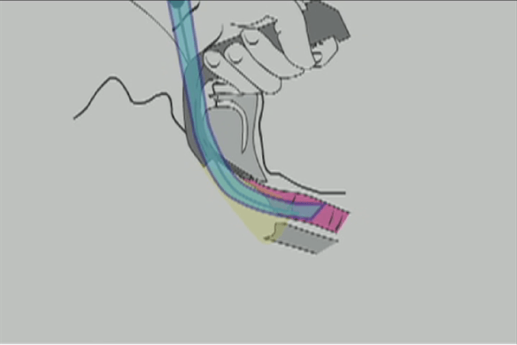 Illustration showing that with the blade tip placed in the upper pharynx, the plane of rotation will lead to the glottis during glidescope intubation
