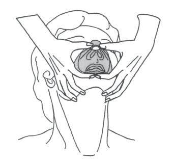 Illustration showing the 4th and final step ti applying a ventilation mask. Seat the mask over the chin, making sure the lower lip is inside the mask.