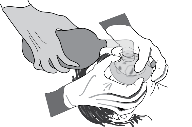 Illustration show how to use both your hands to seal a mask while an assistant squeezes the bag to ventilate.