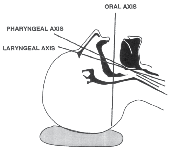 Illustration showing the 3 axes of the airway for intubation with the head in the sniffing position.