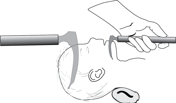 Illustration showing how to estimate the size of a laryngoscope blade for intubating an infant or young child
