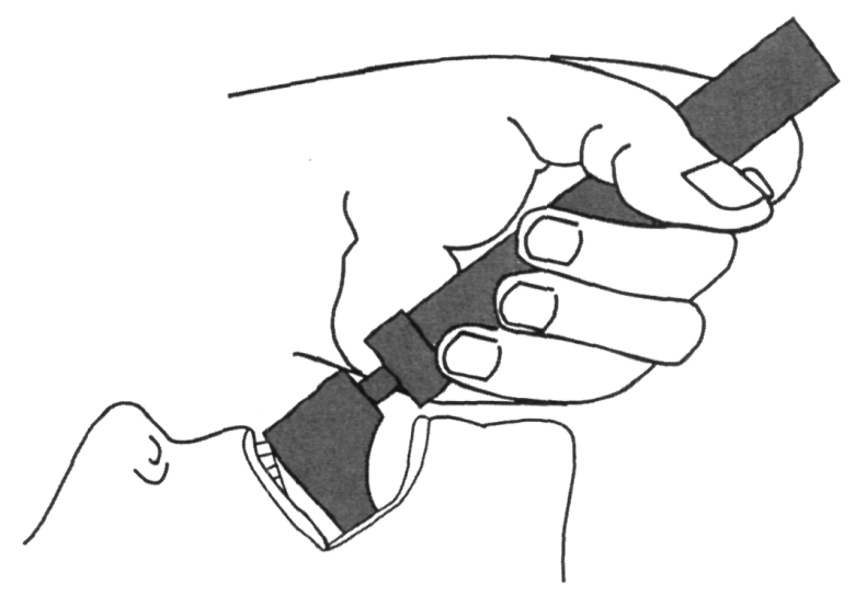 Illustration reminding not to rotate the laryngoscope blade against the teeth