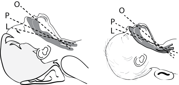 Illustration showing proper positioning of the child vs the infant head during intubation to bring the axes of the airway into alignments