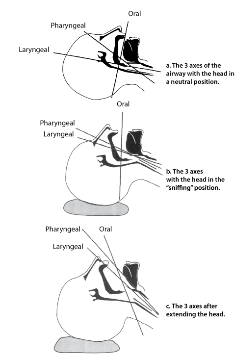Illustration of the 3 axes of airway alignment for intubation