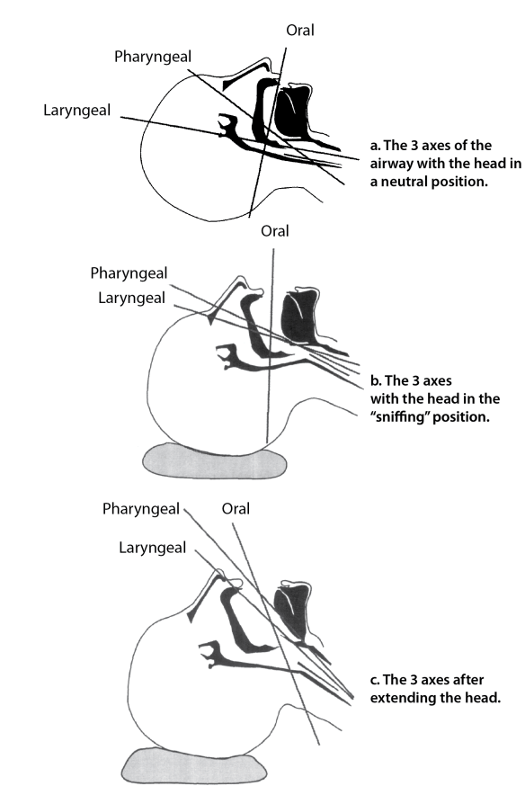 Illustration showing the 3 axes of airway alignment for intubation