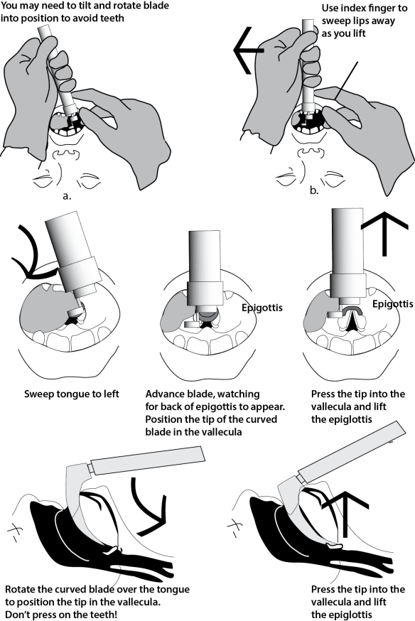 Illustration showing the steps of direct laryngoscopy with a curved blade including blade placement, view of larynx, and cross section of airway