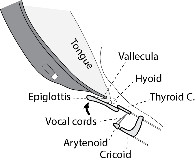 The tip of the curved blade presses on the vallecula, allowing you to lift the epiglottis by pulling on the folds at its base. The glottis is revealed with the epiglottis hanging above it.