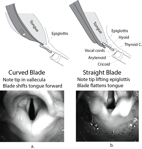 Illustration and photos of the different mechanisms of a curved vs a straight laryngoscope blade