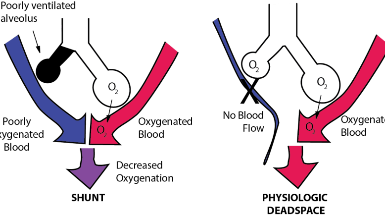 Imbalance between perfusion and ventilation is called ventilation perfusion mismatch. This illustration compares shunt, the perfusion of poorly ventilated alveoli; and Physiologic dead space: the ventilation of poor perfused alveoli.