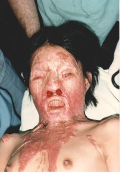 photo of a 13 yo child with severe facial keloid scarring, frontal view