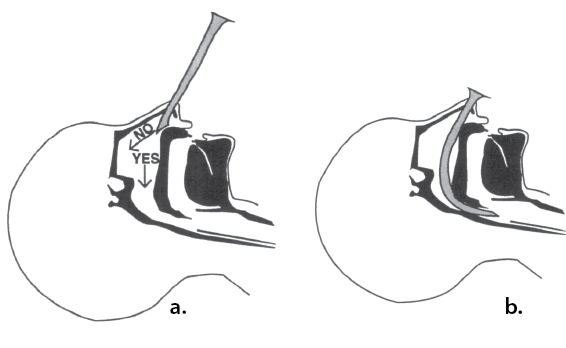Illustration showing proper technique for inserting a nasal airway