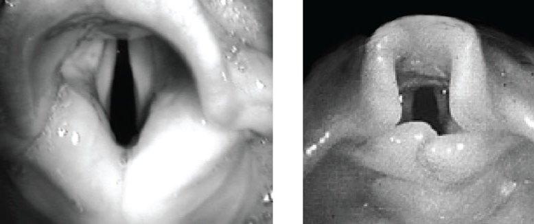 photo comparison of adult vs infant larynx
