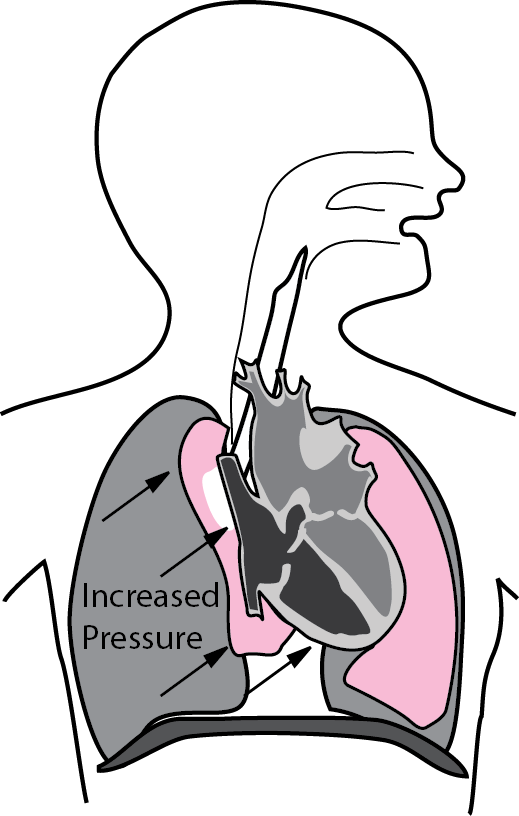 Illustration showing how increased intrathoracic pressure shifts the heart and lungs to the left in a right sided tension pneumothorax .