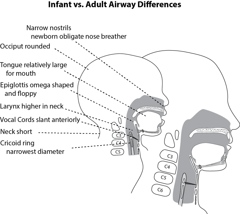 Illustration showing infant and adult head in cross-section and demonstrating the difference in anatomy that effect airway management and intubation.