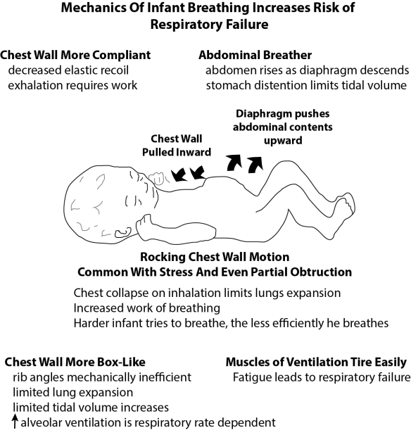 Illustration showing the components of infant anatomy that make the mechanics of breathing inefficient, increasing risk of respiratory failure.