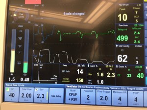 photo of anesthesia monitor showing how a larger tidal volume can sometimes reveal hypercarbia. which was hidden by the size of the equipment dead space.
