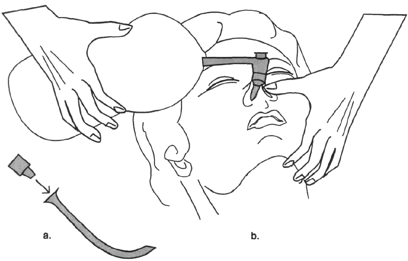 Pediatric Intubation