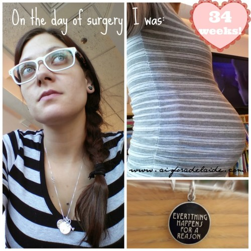 #aisforadelaide #pregnancy #34weeks #baby2 #camillethea #recovery #spinaldecompression #surgery