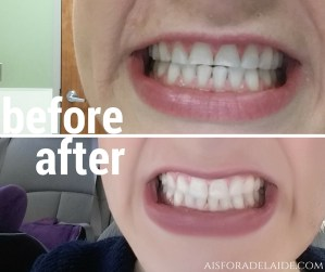 Keep your tooth bonding white with these tips!