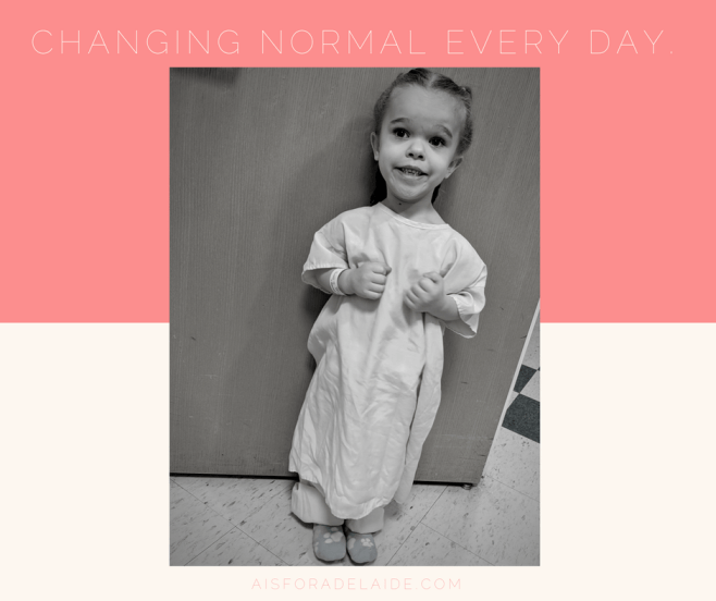 Changing normal every day
