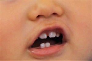 歯が生え始めた赤ちゃん