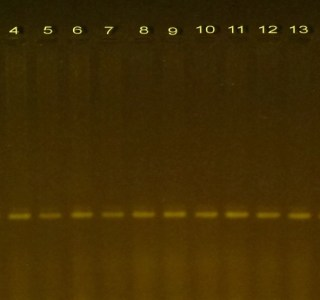 PCR product for PTEN gene for DNA samples of colorectal disease on 1.2 % agarose gel. Molecular marker (1) and (2-18) samples.