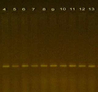 PCR product for PTEN gene for DNA samples of colorectal disease on 1.2 % agarose gel. Molecular marker (1) and (2-18) samples.