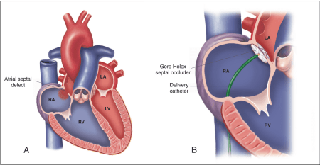 Figure 3. Secundum Atrial Septal Defect and Transcatheter Occlusion. Secundum atrial septal defect is located in the center of the atrial septum (A). Blood usually shunts across the defect from the left atrium to the right atrium. The Gore Helex septal occluder is shown in a partially deployed position across the atrial septum (B). LA = left atrium; LV = left ventricle; RA = right atrium; RV = right ventricle. Illustration by Anne Rains.