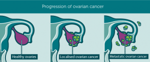 Progression of Ovarian Cancer