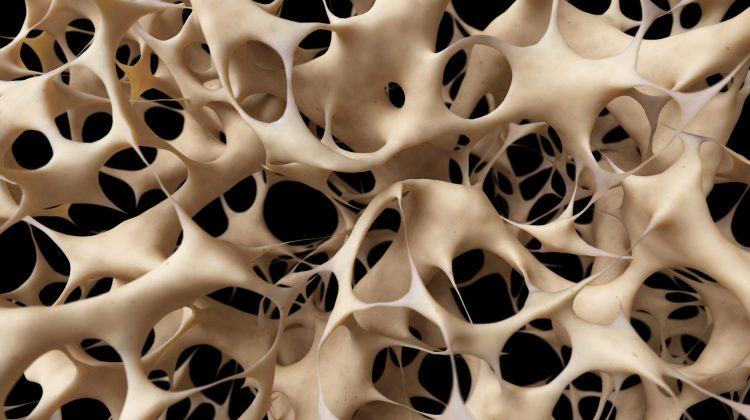 32387683 - osteoporosis - unhealthy bone structure