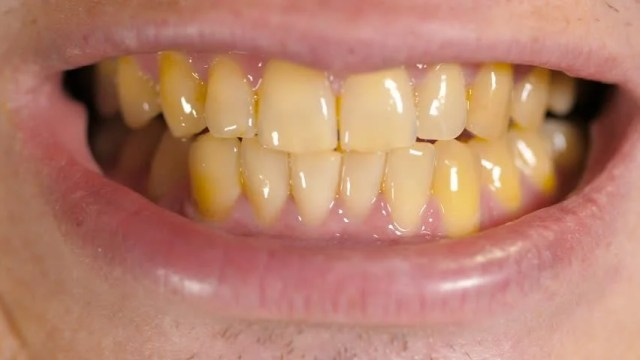 Yellow Teeth of a Man Stock Footage Video (100% Royalty-free ...