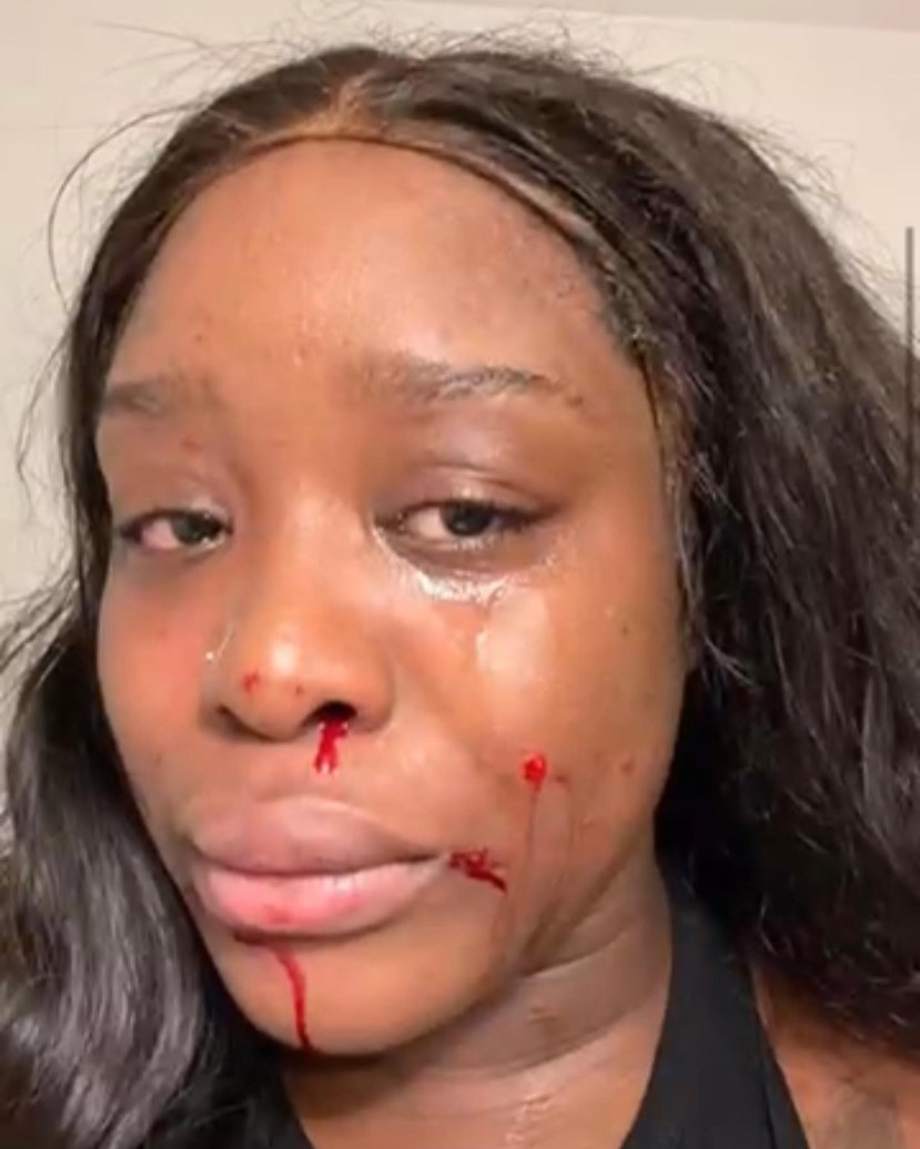 Baby mama of Liberian celebrity Chef calls him out for assaulting her