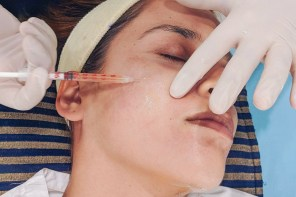 PRP Treatment or Vampire Facial Experience