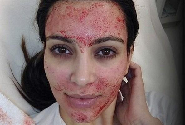 Kim kardashian : du sang pour améliorer son teint de visage (www.akeza.net)