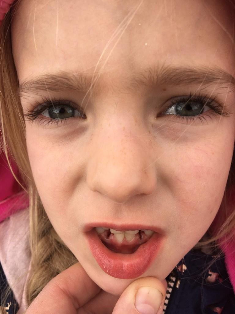 Mirah at the Dentist, Looses More Teeth