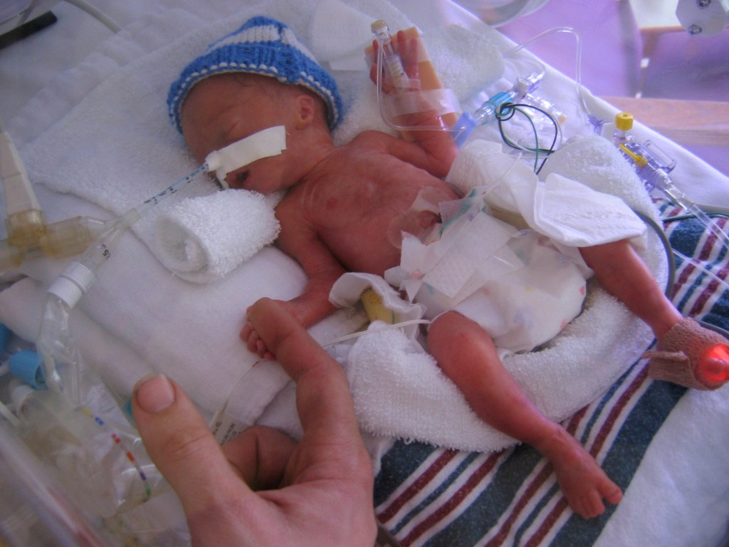Knitting Patterns For Nicu Babies : When You Knit for Preemies - aknitica