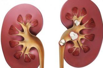 pietre rinichi